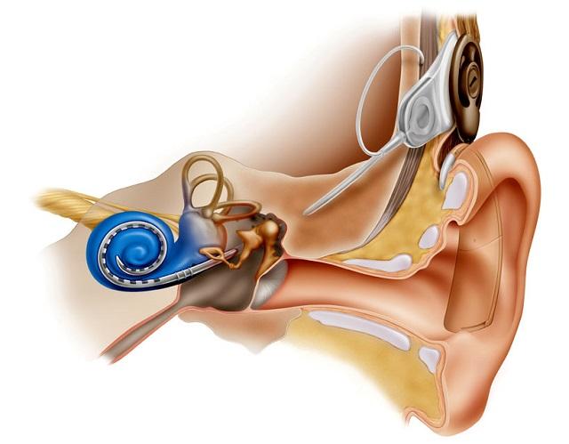 фото кохлеарной имплантации